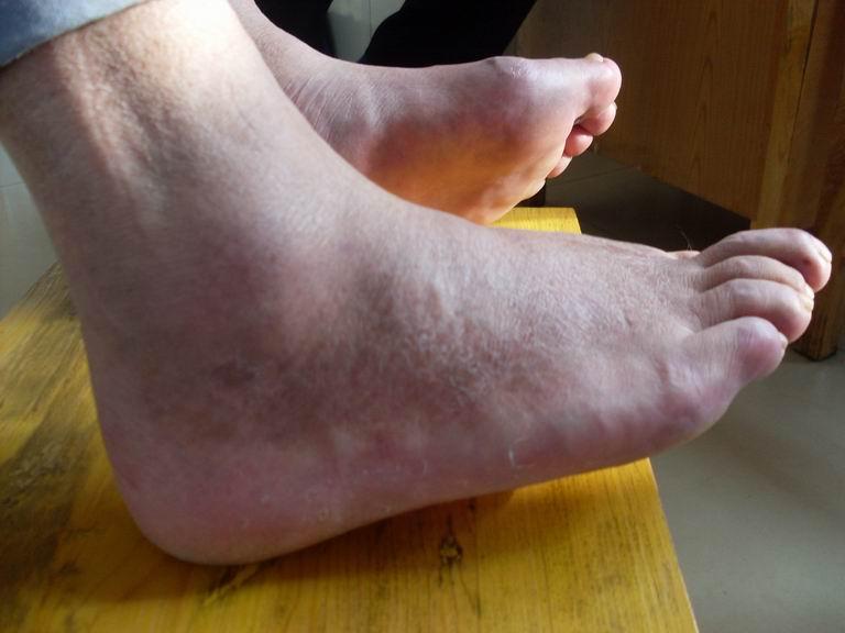 脚趾红肿是早期痛风症状-心绞痛,也可能是痛风