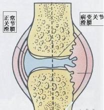 滑膜炎有哪些典型症状