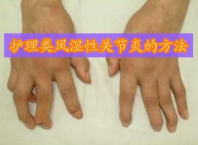 遵义风湿病医院护理人员要知道类风湿性关节炎的护理方法