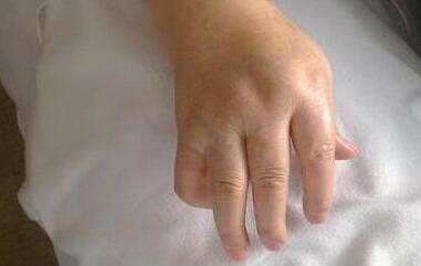 杨女士入院时手指关节红肿畸形