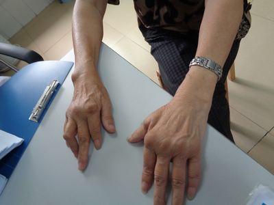 又一名痛风高血压并发患者在贵阳风湿病医院康复