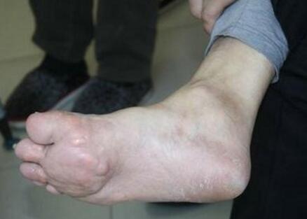 手术后意外感染 致深受痛风折磨多年.jpg