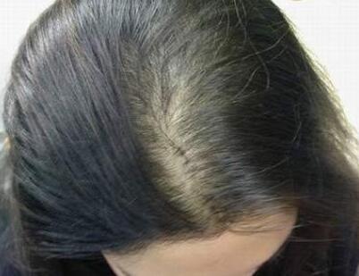 令人窒息!风湿免疫病还可引起脱发?