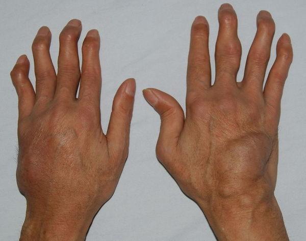 风湿病起病缓慢,常有全身症状和贫血及结节